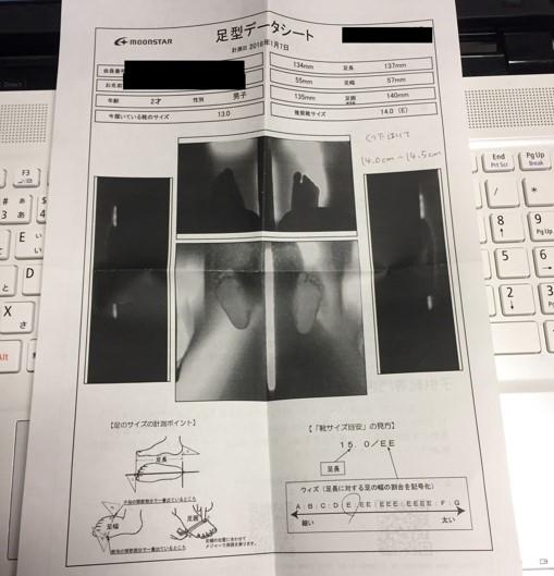 子供の足のサイズを機械で測ったときの写真